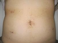 腹腔鏡下手術|各種疾患・治療法...